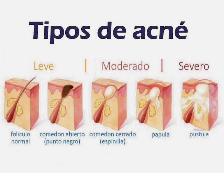 tipos-de-acne-768x593
