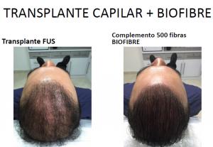 transplante + biofibre