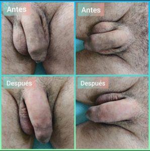 engrosar pene sin cirugia